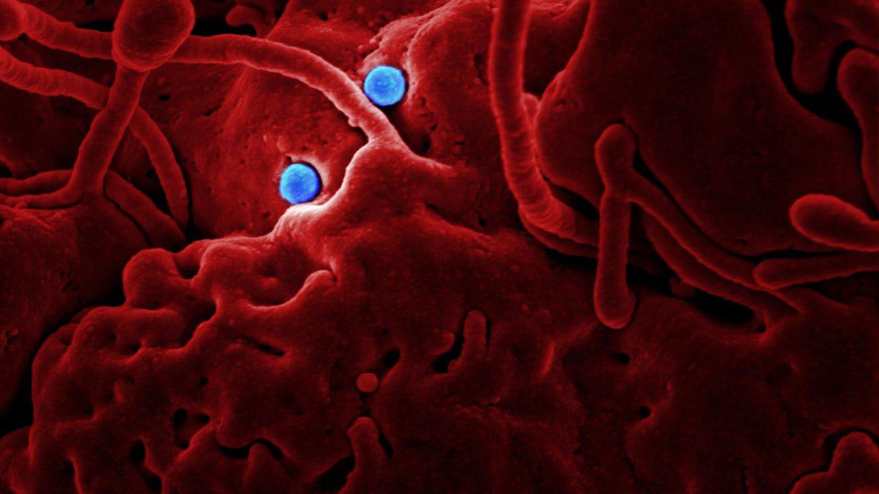 ハンタウイルスとは デマ 別の感染症 致死率